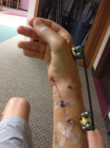 My arm with the cast removed.  A carbon rod was used to hold everything in place.